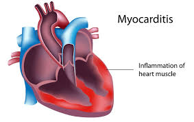 Myocarditis on the Rise